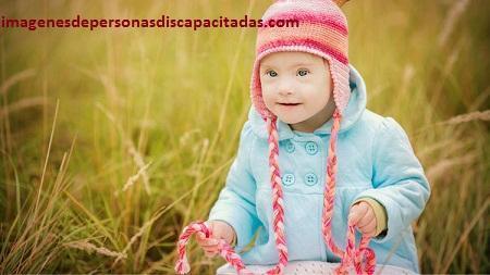 cuidados para niños con sindrome de down amor