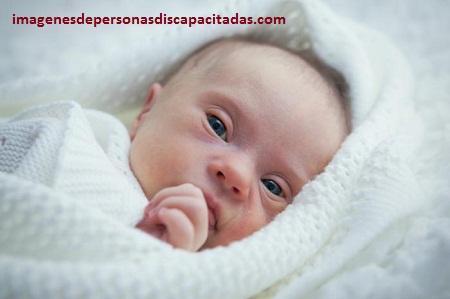 cuidados para niños con sindrome de down bebes