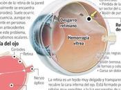 experiencia desprendimiento retina (editado)