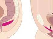 ¿Cómo rehabilitar suelo pélvico tras parto?