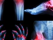 Complicaciones artritis reumatoide