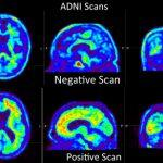Asociación entre Factores de Riesgo Vascular en edad media y depósitos de Amiloide Cerebral.