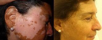 ¿Hay cura para vitiligo? Opciones tratamiento disponibles