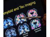 Prevalencia edad-específica sexo-específica β-amiloidosis cerebral, taupatía neurodegeneración personas cognitivamente indemnes 50-95 años: estudio transversal.