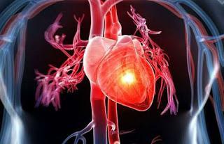 Ataque de pánico y ataque del corazón, Diferencias