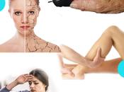 Además dolor inflamación articulaciones ¿existen síntomas artritis?