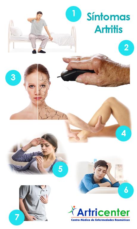 Además del dolor y la inflamación en las articulaciones ¿existen más síntomas de artritis?