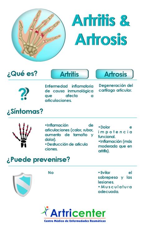 Descubre las diferencias entre artritis y artrosis