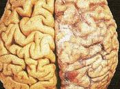 Consumo Moderado Alcohol Atrofia Cerebro
