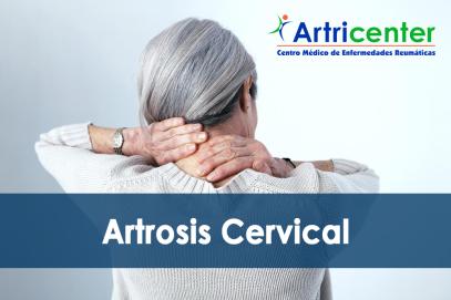 Síntomas de la Artrosis Cervical