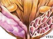 Extracto Granada Demuestra Efectos Antitumorales Prometedores Cáncer Próstata