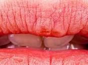 Consejos hidratación para labios secos