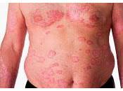 Aprueba Nuevo Medicamento para Tratar Psoriasis