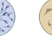 Mutacion Genetica Causante Azoospermia