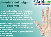 Osteoartritis pulgar