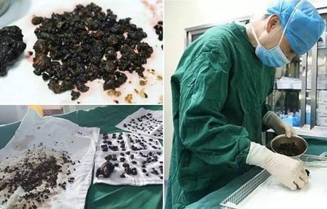 Médicos eliminan más de 200 piedras del cuerpo de una mujer en una sola operación