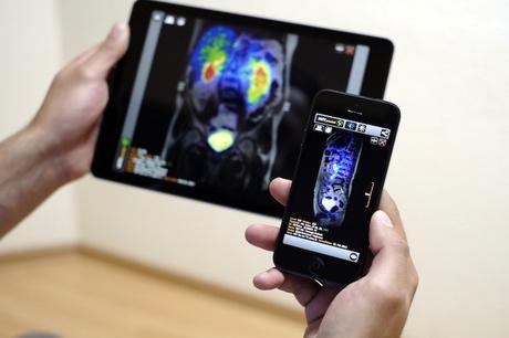 Las mejores aplicaciones médicas para diagnóstico por imagen y radiología