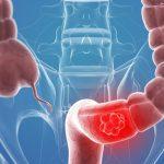 Cáncer colorrectal en el anciano. Tratamiento quirúrgico, quimioterápico y aportación desde la geriatría.