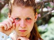 Ojos hinchados hinchazón periorbitaria