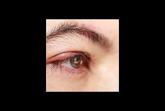 La glicerina para las arrugas alrededor de los ojos