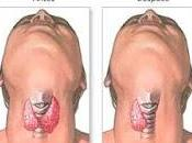 Tiroidectomia Mejora calidad vida pacientes Bócio