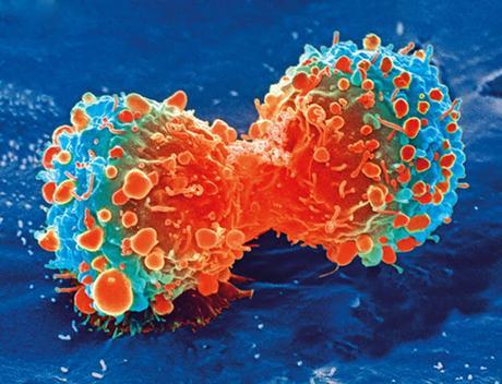 ¿Puede un tumor tener un tumor?