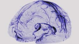Nuestro cerebro puede eliminar desechos a través de los vasos linfáticos