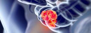 Se descubrió una nueva droga contra el cáncer intestinal