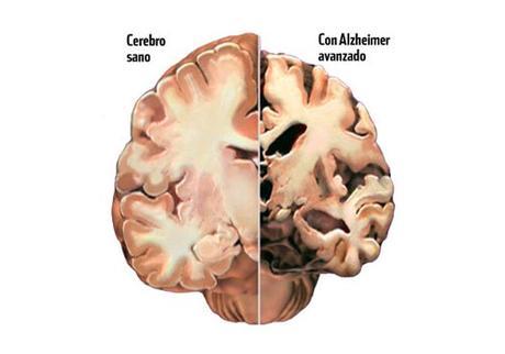¿Se puede prevenir naturalmente el alzhéimer?
