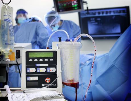 Programa de administración reduce transfusiones innecesarias.