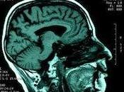 esquizofrenia afecta redes comunicación cerebro