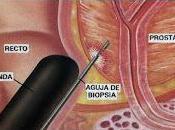 Indice Salud Próstata evita Biopsias innecesarias