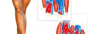 ¿Qué es la insuficiencia venosa crónica?