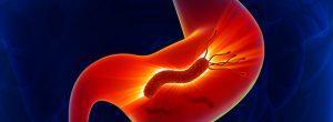 H. Pylori infección del estómago