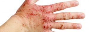 Lo que necesita saber sobre el eccema de manos