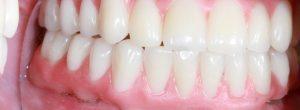 Reemplazo permanente del diente para personas que no tienen dientes: implantes dentales versus dentaduras