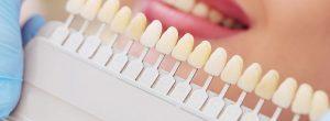 ¿Cuál es la diferencia entre carillas de porcelana y coronas dentales?