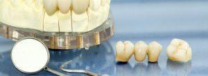 Puentes dentales, coronas e implantes: ¿reemplazo permanente de dientes en fumadores?