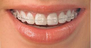 blanqueamiento dental, carillas estéticas, carillas de porcelana, sonrisa perfecta, snowdent, clínica dental,