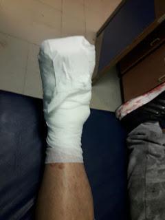 Represión policial deja heridos a trabajadores de ATE del hospital Castro Rendón