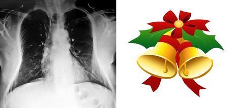 Navidad radiológica