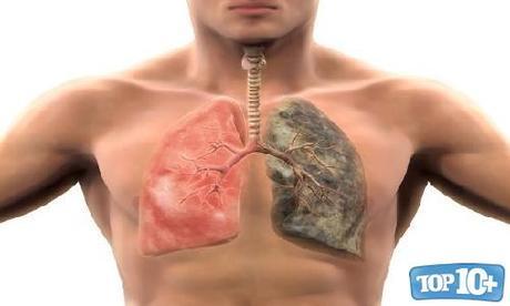 Trasplante de Pulmón-entre-cirujias-mas-caras-del-mundo