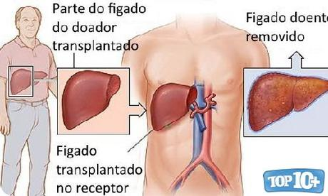 Trasplante de hígado-entre-cirujias-mas-caras-del-mundo