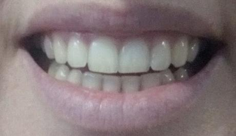 blanqueamiento dental iWhite