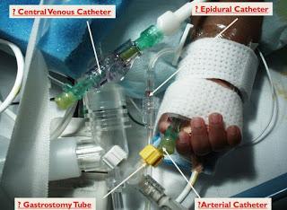 La conexión muerta ENFIt y Neonatología #SegPac