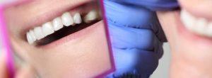 Puentes, coronas e implantes: reemplazo permanente del diente en pacientes con cáncer