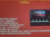 Características Doppler arteria carotida comun