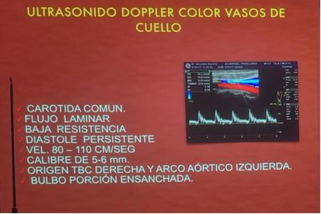 Características Doppler de la arteria carotida comun