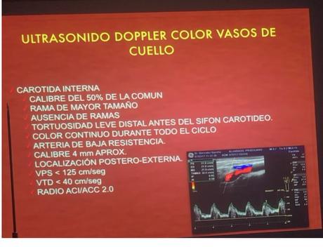 Características del ultrasonido  Doppler de la arteria carotida Interna