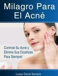 Remedios Homeopaticos Para El Acne – La Mejor Solución Que Pueda Encontrar